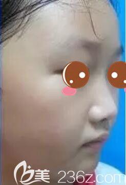 上海虹桥医院疤痕科单兴柱术后照片1