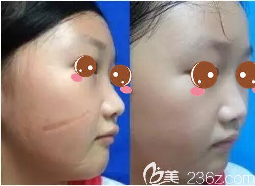上海虹桥医院疤痕科单兴柱疤痕修复真人案例术前术后对比照