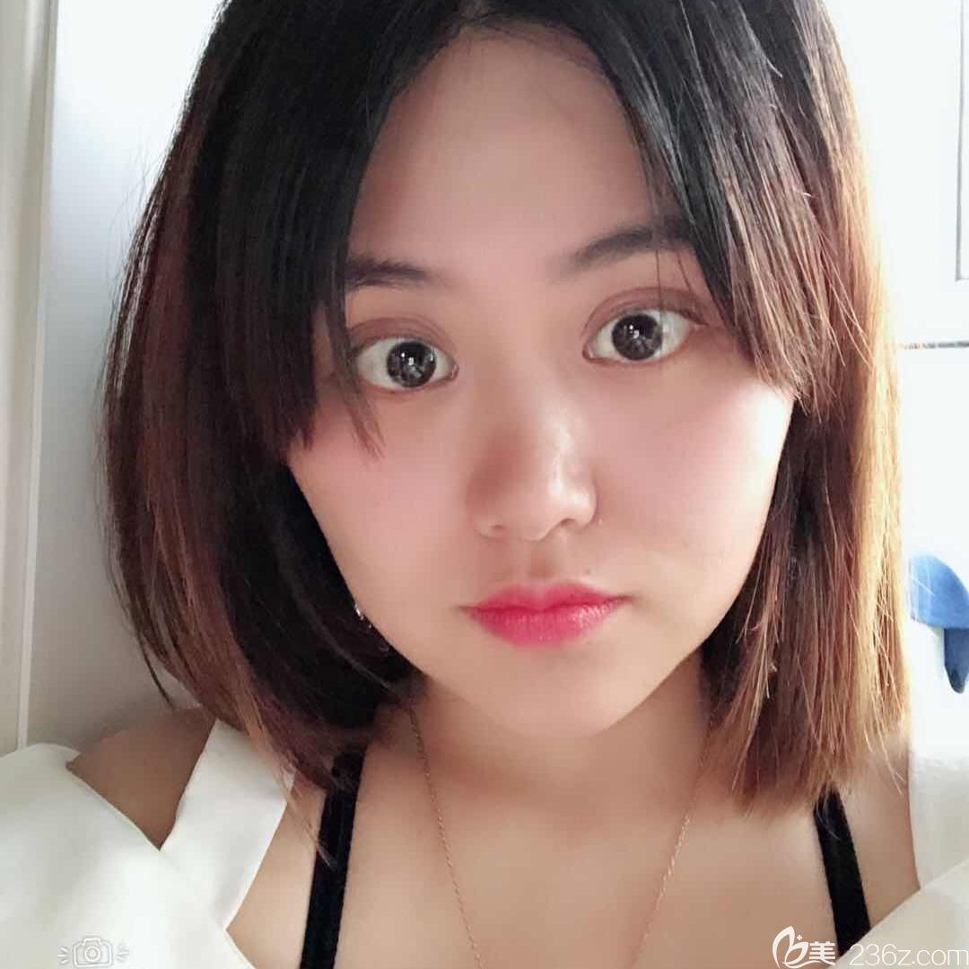 芜湖瑞丽做了面部吸脂瘦脸,效果惊艳众人