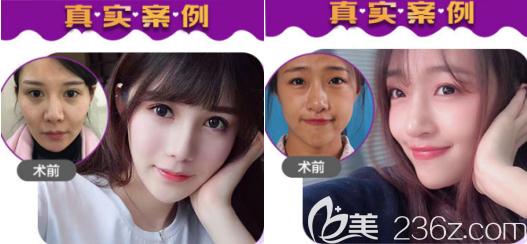 北京美莱自体脂肪填充和隆鼻案例