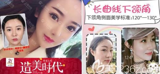 上海美莱下颌角切除+隆鼻案例