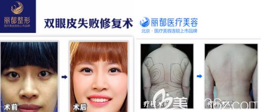 北京丽都吸脂+双眼皮案例