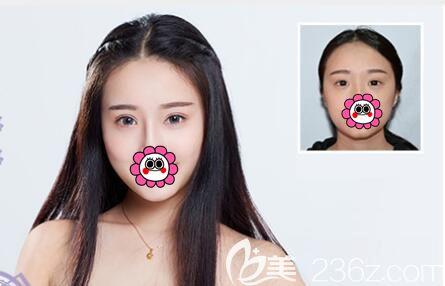 王大太<span style=