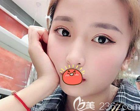 听说杭州格莱美王馨婉是韩国曹仁昌的徒弟和杭州双眼皮网红医生,就找她做了全切双眼皮,效果真不错