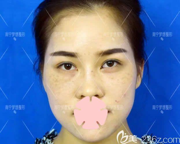 南宁梦想医疗美容整形医院黎洪棉术前照片1