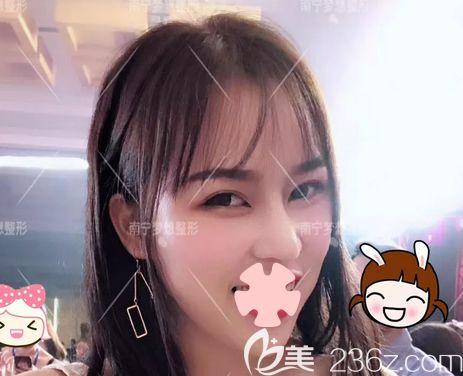 南宁梦想医疗美容整形医院黎洪棉术后照片1