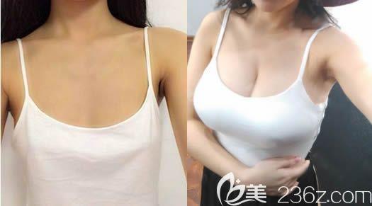 长春正韩整形林伟卓假体隆胸案例前后对比图