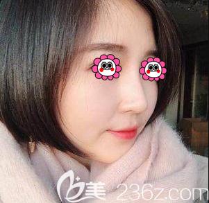 没想到我在北京雅靓找陈林叶医生做完鼻修复后还可拥有高挺小翘鼻
