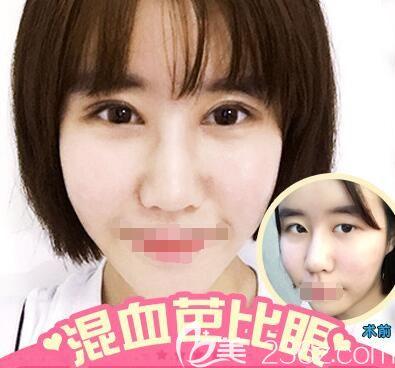 李景方医生双眼皮案例