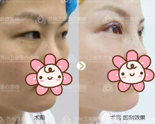 李景方医生刚做完双眼皮和术前对比