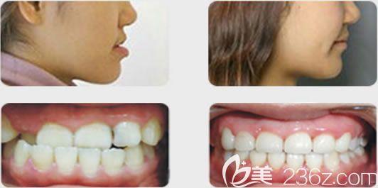 福州维乐郭淑苹地包天牙齿矫正前后对比效果