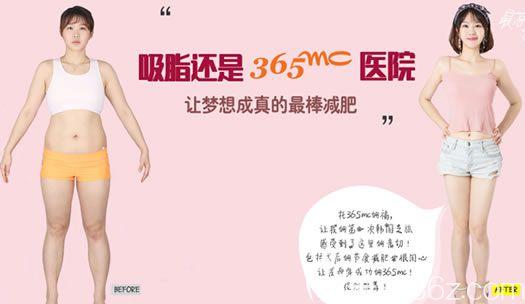 韩国365mc整形医院全身吸脂案例