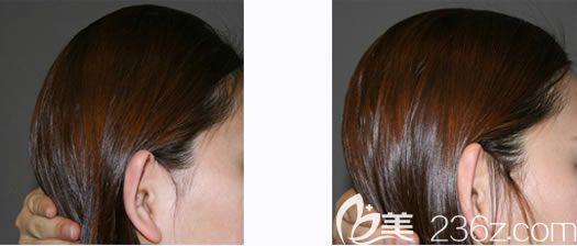 韩国雕刻整形外科后脑勺填充案例