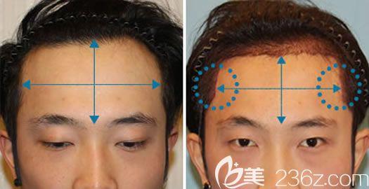 韩国毛杰琳发际线种植案例
