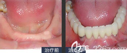 德国4D微创种植牙前后变化图