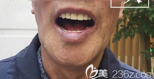 65岁詹大爷在北京中诺口腔做全口种植牙全过程直播 并反馈种植牙后感受