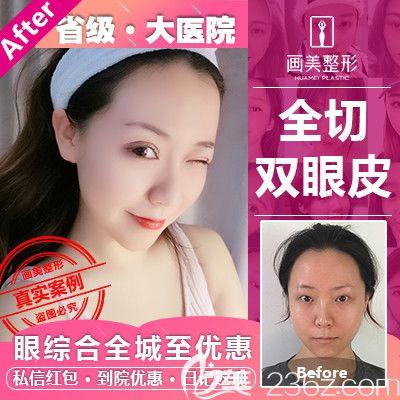 广东画美牟北平做的双眼皮案例