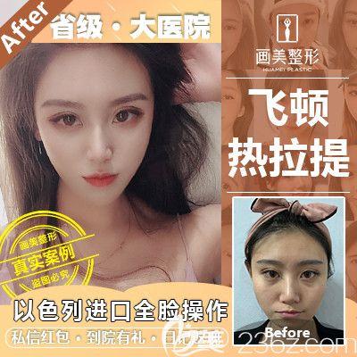 广东画美热拉提全脸治疗案例