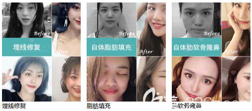 广州佳人眼鼻脂肪填充案例组图