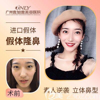 广州壹加壹李明做的肋软骨隆鼻案例