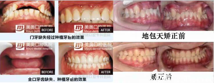天津美奥种植牙及牙齿矫正案例效果