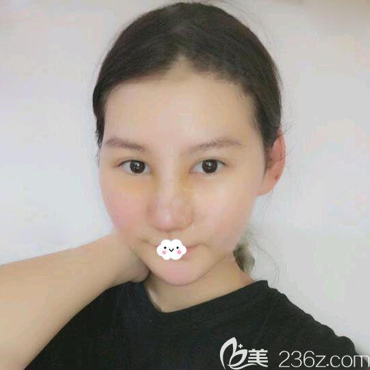 武汉艺星杨国梁隆鼻术后恢复图