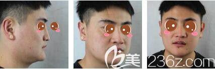 上海艺星医疗美容医院彭才学术前照片1