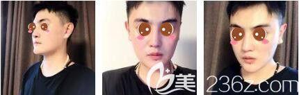 上海艺星医疗美容医院彭才学半肋骨+膨体隆鼻真人案例术后三十一天