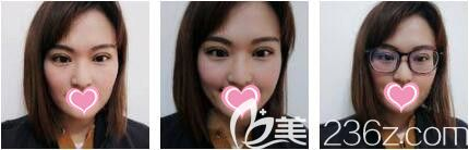 上海艺星医疗美容医院彭才学无痕去眼袋真人案例术后第八天