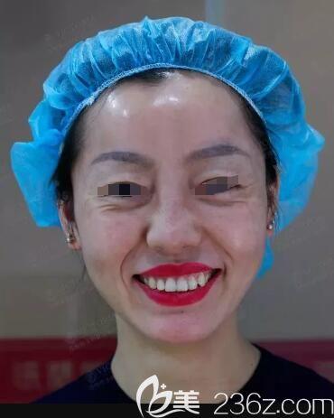 除了面部松弛还有动态皱纹需要改善