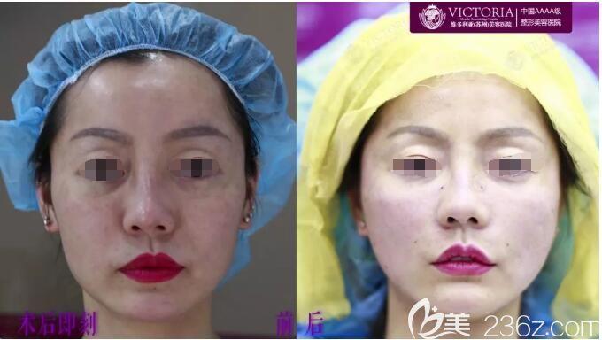 刚做完线雕+瘦脸除皱改善术后即刻对比照