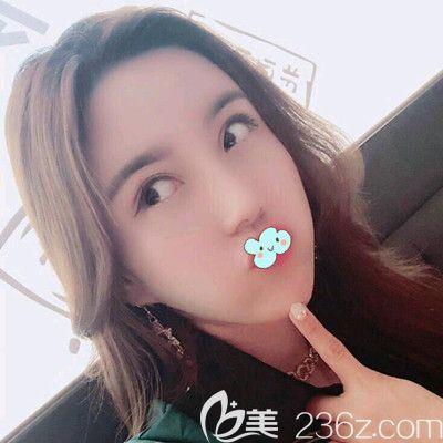 哈尔滨欧兰仁美王海刚打瘦脸针术后1天案例图