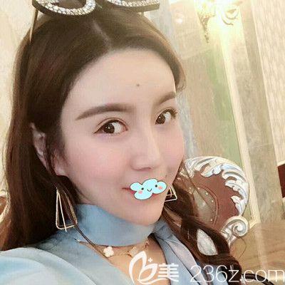 哈尔滨欧兰仁美王海刚打瘦脸针术后27天效果图