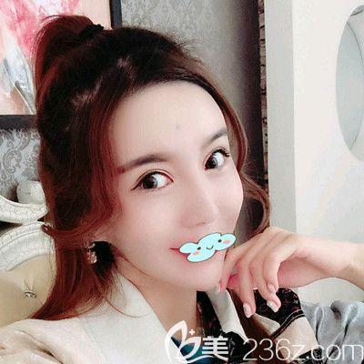 哈尔滨欧兰仁美王海刚打瘦脸针术后60天案例照