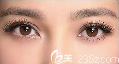 上海美莱做双眼皮好不好?