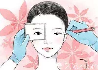 上海美莱做双眼皮术后如何护理