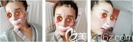 上海艺星医疗美容医院彭才学鼻综合+瘦脸除皱真人案例术后第三天