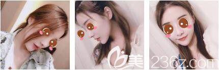 上海艺星医疗美容医院彭才学鼻综合+瘦脸除皱术后五十六天