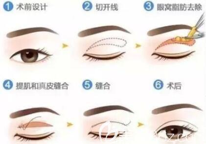 上海美莱医疗美容医院吴海龙双眼皮开多少是个度