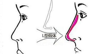上海美莱医疗美容医院王琳隆鼻假体如何选择