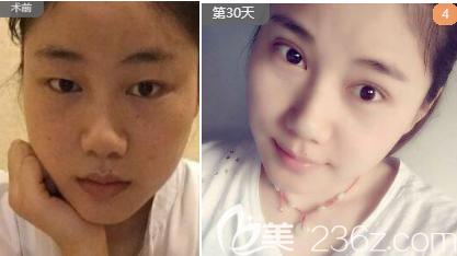 西安女子医院美容整形科双眼皮案例