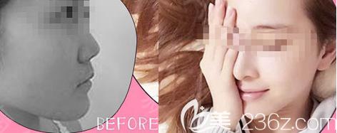 西安女子医院美容整形科假体隆鼻案例