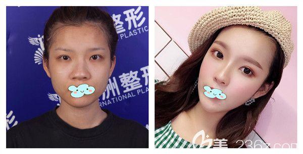 五洲莱美刘骏医生肋软骨隆鼻真实术后对比照展示