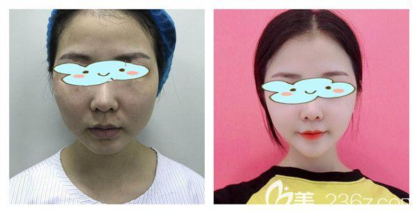 武汉五洲莱美刘杨医生全面部线雕提升术后15天效果对比照