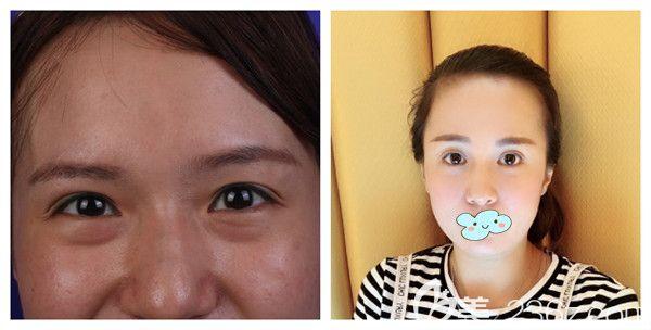 五洲莱美周旭刚内切祛眼袋术后28天案例展示