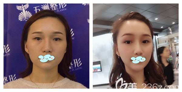 武汉五洲莱美刘杨玻尿酸面部填充+瘦脸除皱瘦脸真实术后效果图