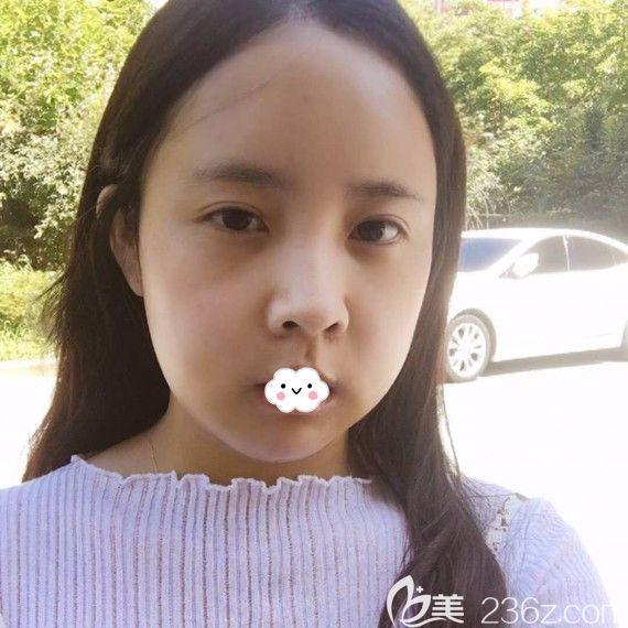 韩国Faceline整形医院面部不对称畸形矫正术后效果