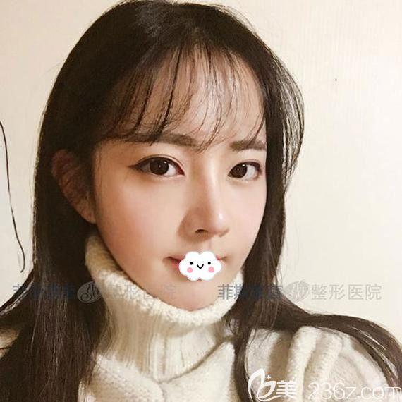 左右脸不对称怎么办?找韩国菲斯莱茵做面部轮廓整形案例