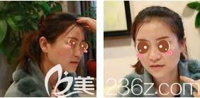 上海艺星医疗美容医院徐熠涵术前照片1