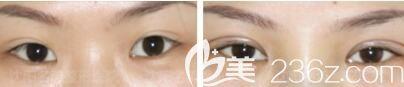 王莉莉双眼皮修复真人前后效果对比